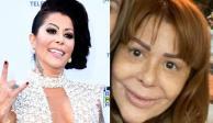Alejandra Guzmán, así ha sido la transformación de su rostro (FOTOS)