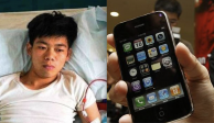 Vendió su riñón para comprar un Iphone; quedó con discapacidad