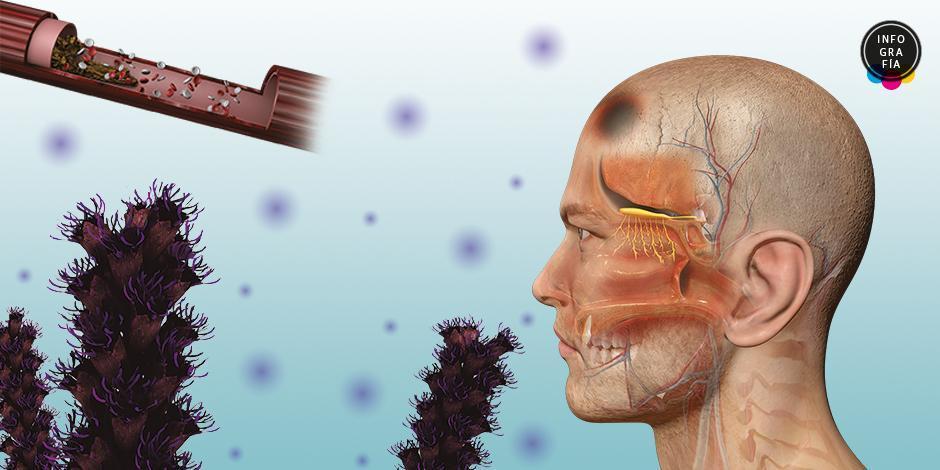 Mucormicosis, su relación con el SARS-CoV-2 y como afecta a nuestro organismo