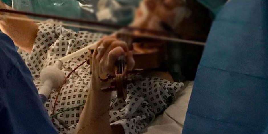 Mujer toca el violín durante cirugía para extirparle un tumor cerebral
