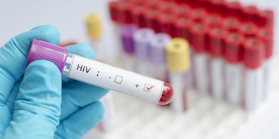 Avance contra el Sida: células madre eliminan VIH de otro paciente