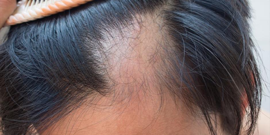 Pérdida de cabello está asociada al estrés, depresión y ansiedad