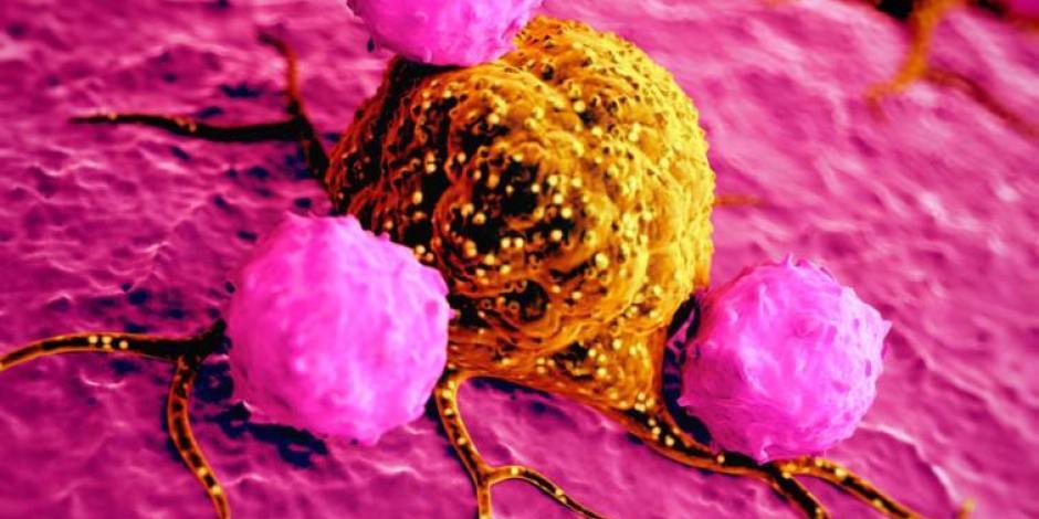 Hay esperanza; crean gel que evita propagación del cáncer