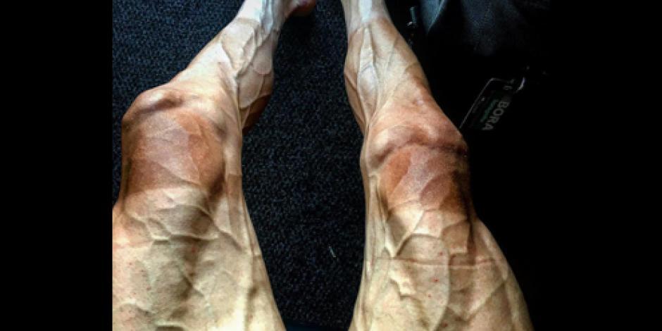 Así quedaron las piernas de un ciclista tras 16 etapas en Tour de France