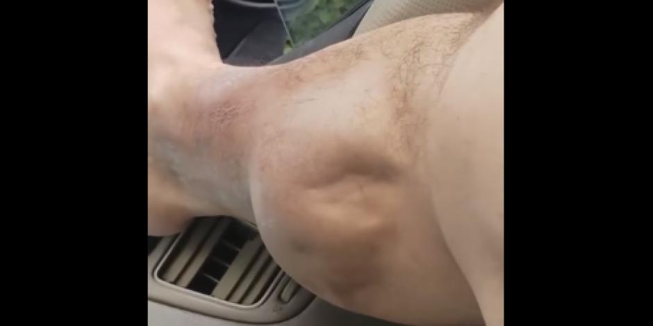 VIDEO: Calambre en una pierna de un joven causa revuelo en redes