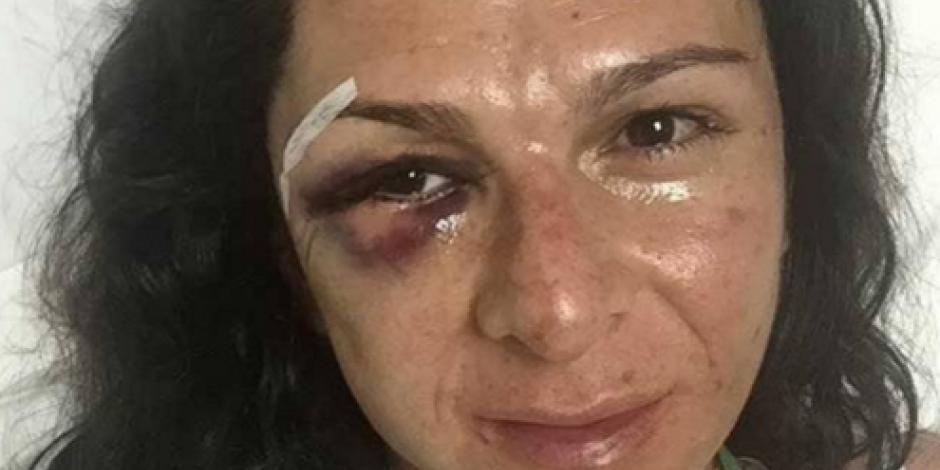Inmujeres condena agresión contra senadora Ana Guevara