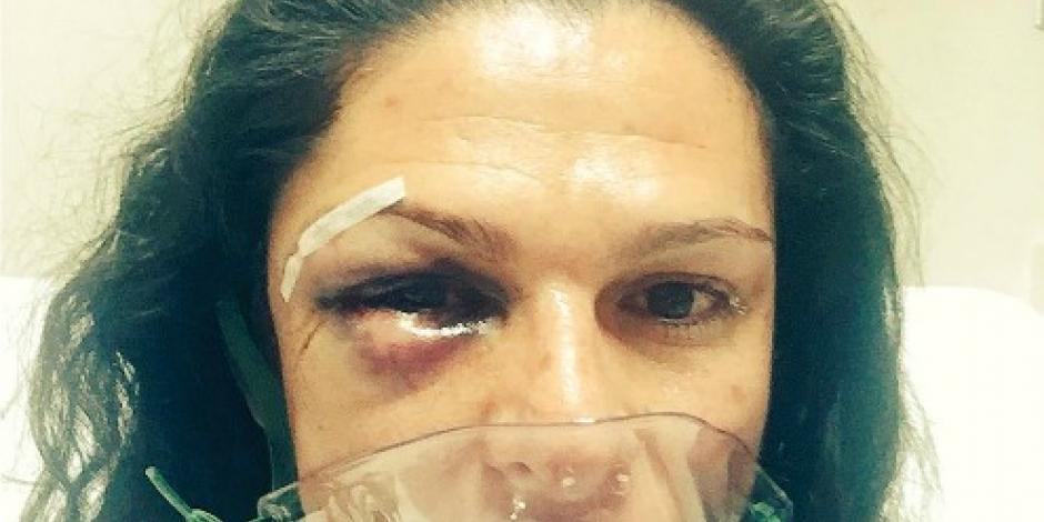 Investiga PGR agresión a Ana Gabriela Guevara