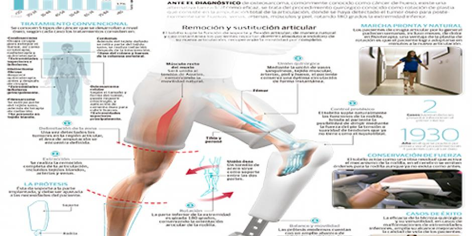 Plastia de rotación, técnica quirúrgica radical
