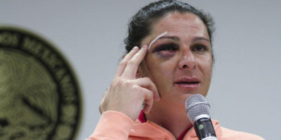 Conapred urge dar con agresores de Ana Guevara