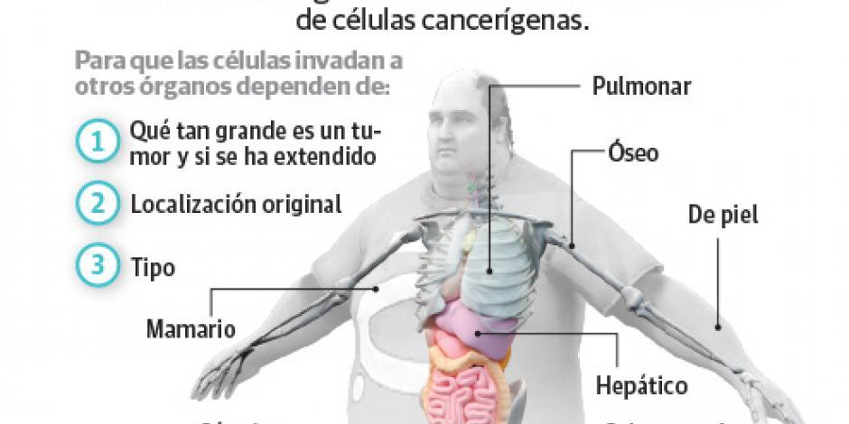 Identifican células que disparan la propagación del cáncer