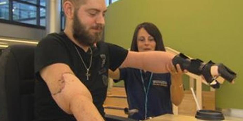 Ex soldado de EU recibe doble trasplante de brazos