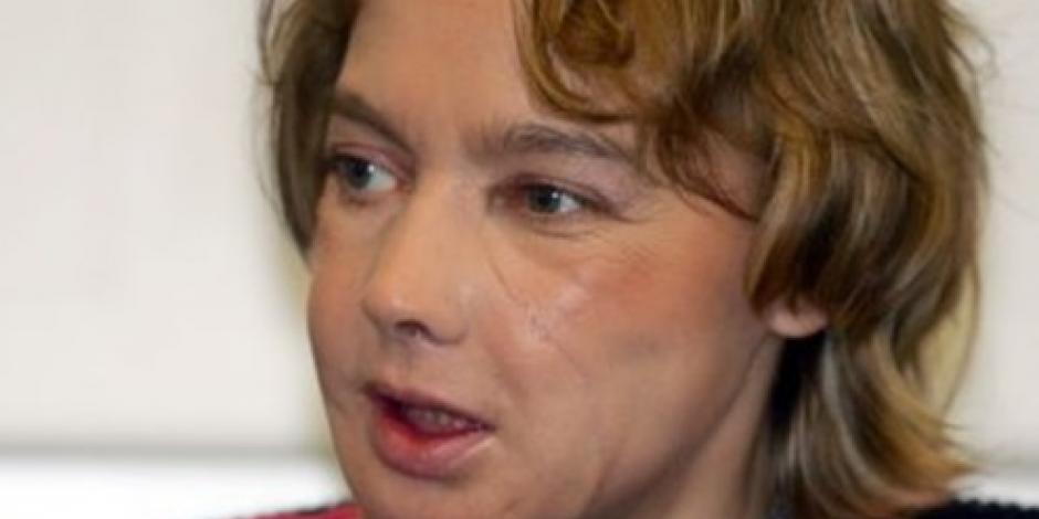Fallece la primera mujer que fue operada de la cara