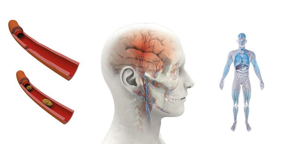 El riesgo de sufrir un accidente cerebrovascular por exceso de horas ante el ordenador o TV